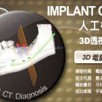 新竹竹北薏安3D植牙中心 植牙八大成功要素